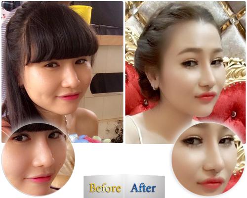 Tiến sĩ, BS Đỗ Thành Trí đã áp dụng phương pháp nâng mũi tái cấu trúc S line 3D Fixed Y cho Thùy Linh, người đã từng theo theo phương pháp Floating cũ lâu ngày vùng chóp mũi, đầu mũi bị gẫy, sụp do kém nâng đỡ.