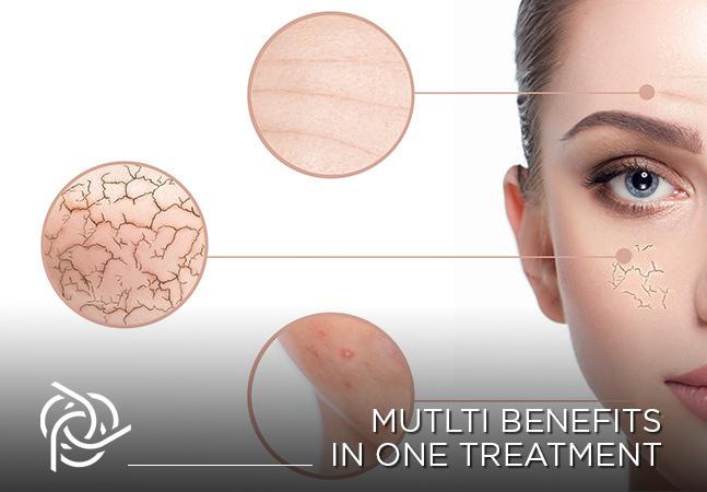 liệu trình Instant Beauty chăm sóc da mùa hè tại PPP Laser Clinic