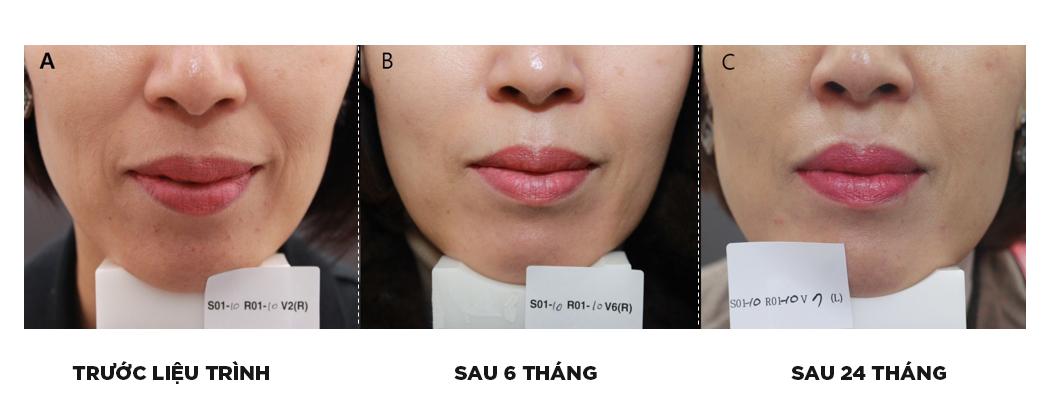 Trẻ hóa da với filler truyền thống? Cập nhật công nghệ AestheFill thế hệ mới nhất thay thế cấy mỡ vừa có mặt tại Việt Nam